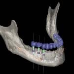 Implantologie in Freiburg